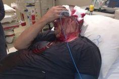 Plaasaanval, man ná brutale aanranding in hospitaal opgeneem na onbekende aantal aanvallers op hul toesak, Mpumalanga