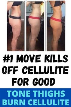 A Lifestyle approach to cellulite reduction will help you to get rid of it and keep it off. Specially with Back leg cellulite exercises. The components of the lifestyle approach for minimizing cellulite include proper diet, treatment options, exercise and your secret weapon, the power of your mind. Try These cellulite exercises For thighs and Butt. You can see the diffent compare with Before and after pics. Try These 3 Workout for cellulite and tone your legs. #cellulite getridofcellulite