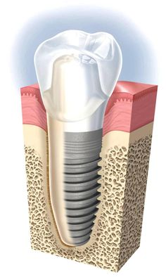 Dental implant www.giedentallab.com