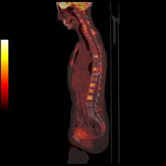 Metastatic bony disease from breast cancer, as seen on PET/CT using 18-F labeled fluorodeoxyglucose