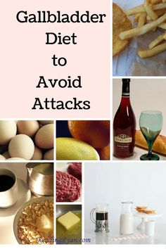 Gallbladder diet to avoid attacks - a comprehensive list of food/beverages to avoid a gallbladder attack. Gallbladder Attack Diet, Gallbladder Surgery, Gallbladder Cleanse, Gallbladder Recovery, Galbladder Diet, Diet Food List, Foods To Avoid, Foods To Eat, Bland Diet