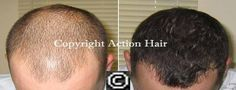 Action Hair Clinic's offers best common hair loss treatment in Auckland. Stop hair loss with laser hair therapy. We have different action hair loss items. We give successful characteristic hair loss treatment for men and ladies the chance to attain to the best common hair development results. For more information about Action Hair Clinic visit our site. http://regrowhair.co.nz/