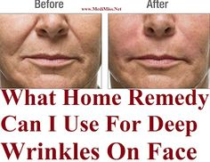 What Home Remedy Can I Use For Deep Wrinkles On Face ~ MediMiss