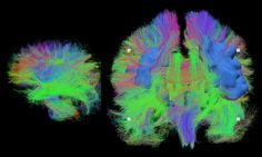 This is a detailed map of the brain wiring in a sleeping newborn baby (left) and an adult in their seventies (right), visualized using MRI. Artificial Brain, Mri Brain, Brain Connections, Microscopic Photography, Science Images, Things Under A Microscope, Brain Waves, Beautiful Mind, Creative Thinking