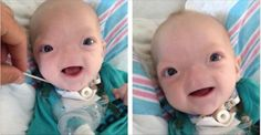 Baby Born Without A Nose Is So Cute, He's Melting People's Heart | Fact Rider