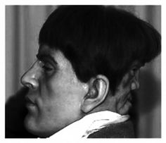 Edward Mordrake (sometimes written Edward Mordake) is claimed to be a 19th century heir to one of the peerages in England who had an extra face on the back of his head. According to the story, the extra face could neither eat nor speak, but it could laugh and cry. Edward begged doctors to have his 'devil twin' removed, because, supposedly, it whispered horrible things to him at night, but no doctor would attempt it. He committed suicide at the age of 23.