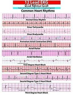 ekg interpretation - Google Search                                                                                                                                                                                 More