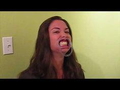Bad Joke Telling Olson Orthodontics style