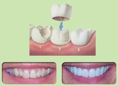 Crowns are crafted permanent coverings for teeth. We offer porcelain fused to metal, all porcelain, and gold crowns. Crowns cover cracked teeth, old large cracked fillins, and offer protection after it has had root canal treatment. http://epicdentalassociates.com/crowns.html