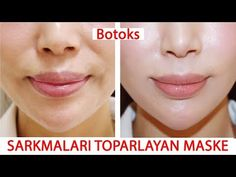 Botox Effect Natural Mask Recipe That Collects Sagging In Just 1 Application - Beauty Care - Skin Care, Nails , Body Makeup, Summer Skin Care Homemade Skin Care, Diy Skin Care, Body Makeup, Skin Makeup, Aloe Vera Maske, Facial Yoga, Dry Skin Remedies, Facial Care, Beauty Tricks