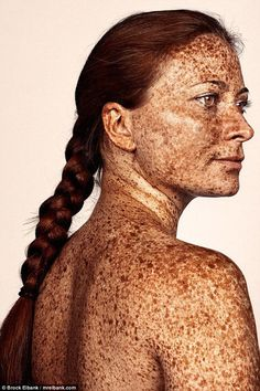 Freckles are often found on people with fair complexions, such as people with red hair. Because people with paler skin generally have less melanin, which is the pigment that gives skin, hair, and eyes their color. Pretty People, Beautiful People, Beautiful Women, Beautiful Freckles, Freckle Face, Unique Faces, The Face, Interesting Faces, Human Body