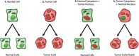 Cancer as a metabolic disease: implications for novel therapeutics