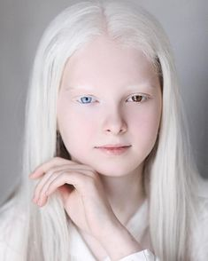 Amina Ependieva is an Chechen girl whose unusual beauty is the result of a rare combination of genetic conditions - albinism and heterochromia. Pretty People, Beautiful People, Albino Girl, White Blonde Hair, Ethereal Beauty, Natural Beauty, Shooting Photo, Pale Skin, Drawing People