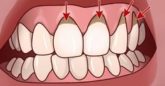 Your mouth is your lifeline. Good oral hygiene is important, and for some people, even brushing and flossing twice daily is not enough to stave off gum disease. Gum Health, Oral Health, Health And Wellness, Health Tips, Health Care, Herbal Remedies, Health Remedies, Home Remedies, Natural Remedies