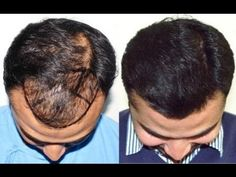 Worst Hair Transplant Results Ever