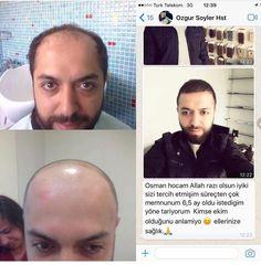 #sakalekimi #sakalektirmek #biyik #bıyıkekimi #kaşekimi #sacekimi #osmanceylan #sacekimi #sacekim #istanbulsacekimi #sakalekimi #kuveyt #kuveit #dubai #dubaimall #sacprp #prp #mezoterapi #istanbul #mydubai #hairtransplant #hairtransformation #suudiarabia #stabilhair #hairloss #turkey #turkiye...