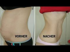 Ärzte sind sprachlos! Koche nur 2 Zutaten und verliere schnell Bauchfett! - YouTube Fett, Youtube, Blog, Sport, Beauty, Drink Recipes, Chef Recipes, Abdominal Pain, Healthy Drinks