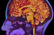 THC Very Definitively and Effectively Treats Alzheimer's Disease - Medical Marijuana News Pet Scan, Brain Health, Mental Health, Adrenal Health, Adrenal Fatigue, Chronic Fatigue, Chronic Pain, Clash On, Gene Therapy