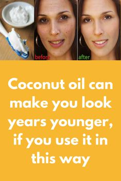 Coconut oil can make you look years younger, if you use it in this way Skin experts say that using Coconut oil can bring the youth back. Your skin health depends on the products you are using. Many brands are present on the market, and you probably have y Natural Hair Mask, Natural Hair Styles, Natural Beauty, Beauty Skin, Health And Beauty, Les Rides, Skin Tag, Beauty Hacks, Beauty Tips