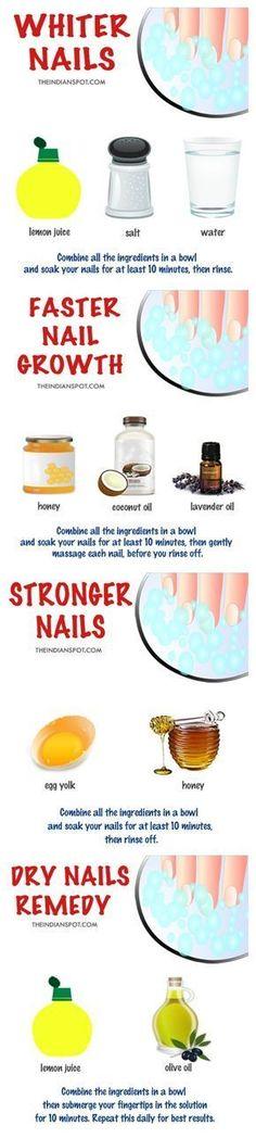 Wie man weiße Nägel bekommt! http://hubz.info/96/natural-makeup-ideas