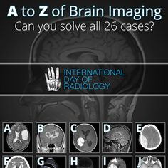 A to Z of Brain Imaging. An international Day of Radiology special event by… Radiology Schools, Radiology Student, Radiology Imaging, Medical Imaging, Brain Anatomy, Anatomy And Physiology, Medical Humor, Medical School, Nuclear Medicine