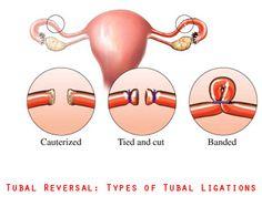 36 Best Tubal Reversal Images Tubal Reversal Fit Pregnancy