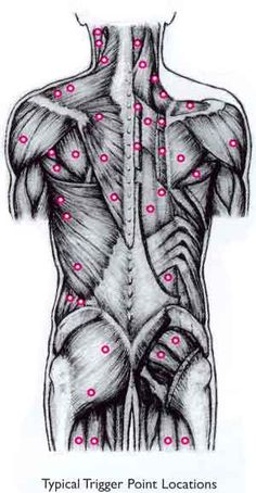 Trigger Point Massage - Aaaaw yeah!! Love to do Trigger Point! So effective in chronic (and acute) pain relief!