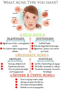 types of Acne vulgaris image - Acne Treatment Acne Rosacea, Hormonal Acne, Acne Skin, Oily Skin, Pimples, Cystic Acne Treatment, Skin Treatments, Natural Acne Treatment, Health And Wellness