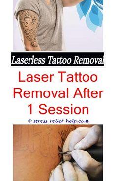 Viac ako 25 najlep ch n padov na pintereste na t mu for How much is picosure tattoo removal