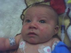 My son in hospital due to biliary atresia.