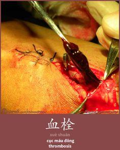 血栓 - xuè shuān - cục máu đông - thrombosis