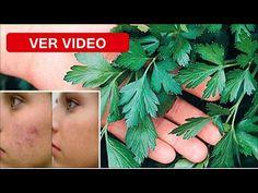 Tan Sólo una Hoja y Eliminarás Arrugas, Acné, Alergias y Manchas de tu Rostro - YouTube