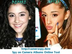 Ariana Grande Plastic Surgery Before and After Nose Job – Care – Skin care , beauty ideas and skin care tips Bad Plastic Surgeries, Plastic Surgery Photos, Celebrity Plastic Surgery, Ariana Grande, Mariah Carey, Forehead Lift, Bulbous Nose, Dental Veneers, Celebrities Before And After