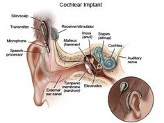 Cochlear Implants= HUGE controversy
