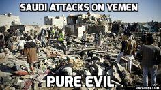 . Saudi-Led Coalition is 'Responsible' for Attacking Yemeni Children