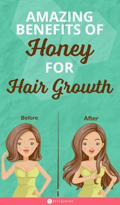 Benefits Of Honey For Hair + 15 DIY Hair Amazing Benefits Of Honey For Hair Growth: Who knew that slathering the sticky, sweet substance onto your hair could help? Okay, some of you probably did know honey has conditioning properties. Hair Growth Charts, Hair Mask For Growth, Hair Growth Tips, Natural Hair Growth, Honey Benefits, Hair Pack, Healthy Hair Tips, Hair Regrowth, Hair Oil