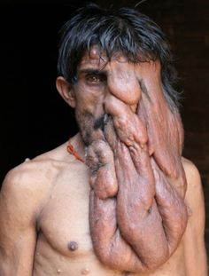 Indian 'elephant man' lives a reclusive life, and hates looking in the mirror