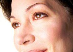 eyelidsurgery