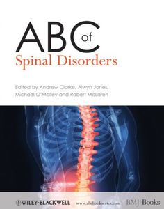 ABC of Spinal Disorders PDF Free Download - Medical Study Zone Books To Read Online, Reading Online, General Practitioner, Primary Care, Sciatica, Paperback Books, Back Pain, Disorders, Medicine