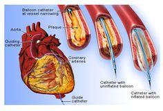 13 Best Heart Disease treatment images in 2019   Ayurvedic