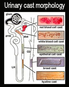 Medical Laboratory and Biomedical Science: Urinary cast morphology