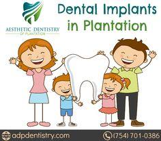 Affordable Dental implant Service in Plantation