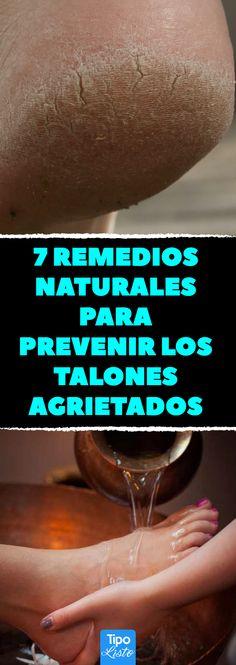 7 remedios naturales para prevenir los talones agrietados #soluciones #grietas #pies #salud #belleza #tipolisto