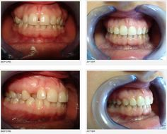 orthodontics case, orthodontics treatment review, DDS Simona Salavastru,esthetics,frontal and lateral teeth
