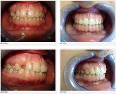 orthodontics case, orthodontics treatment review, DDS Simona Salavastru,esthetics,frontal and lateral teeth