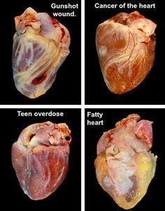 Four human hearts with various afflictions. I was just wondering if the Heart could get Cancer. I reckon so!