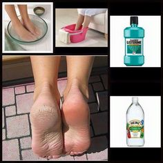 Cracked Heels Remedy 1/2 cup Listerine 1/2 cup White Vinegar 1 cup warm water Skin falls off, if severe double dose.