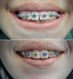 Teeth Implants, Dental Implants, Oral Health, Dental Health, Severe Tooth Pain, Teeth Whitening Cost, Dental Costs, Dental Bridge Cost, Family Dental Care
