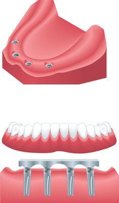 Sofortbelastung auf #Zahnimplantaten: All on Four Concept für feste #Zähne