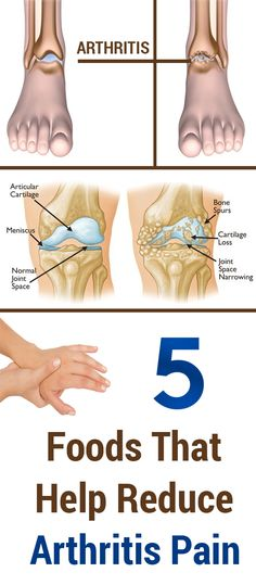 5 Foods That Help Reduce Arthritis Pain